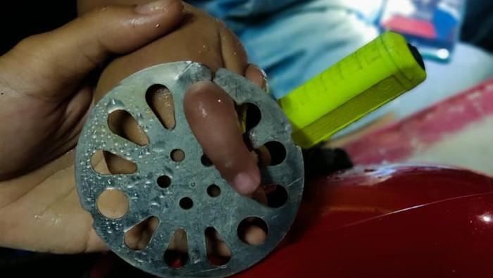 Jari tangan bocah di Setiabudi, Jaksel tersangkut floor drain. Foto dikirim Kepala Sudin Gulkarmat Jaksel, Herbert Plider Lomba Gaol