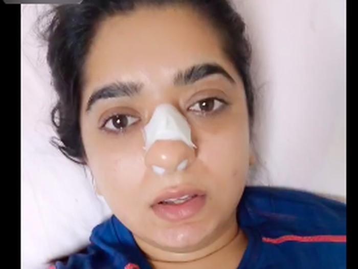 Duh! Pengantar Makanan Ini Pukul Hidung Pelanggan Wanita Sampai Berdarah