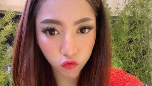 Alasan Monica Indah Ngaku Jadi Korban Filler Payudara Ilegal