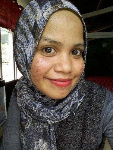 Kisah Saruni yang menjalani perawatan di klinik kecantikan abal-abal.