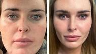 10 Transformasi Wajah Orang-orang yang Berubah Drastis Setelah Oplas