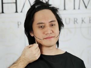 Mengenal Cangkok Rambut Seperti yang Dilakukan Kevin Aprilio