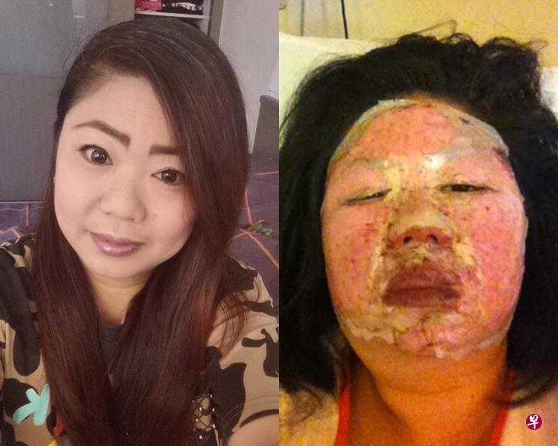 wanita ini dapat ganti rugi Rp 1 miliar karena kena ledakan kuah hot pot