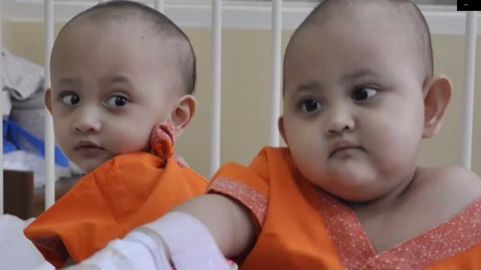 Bayi Kembar Siam Naifa-Nayyara
