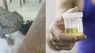 Parah! Ketahuan Pacaran, Remaja Ini Dipaksa Minum Air Kencing dan Liur