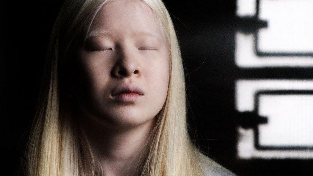Wanita Albino Ini Dibuang Ortu karena Dianggap Kutukan, Kini Jadi Model Vogue
