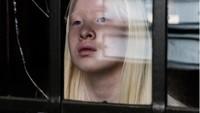 8 Potret Model Albino yang Punya Masa Lalu Kelam, Dibuang Ortu di Panti Asuhan