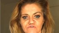 Curhat Wanita yang Di-bully karena Wajah Membusuk Setelah Kecanduan Narkoba