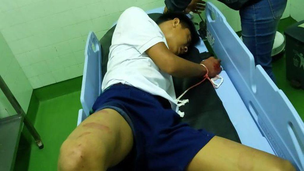 Remaja di Bali Sengaja Tabrakkan Diri ke Mobil yang Melintas