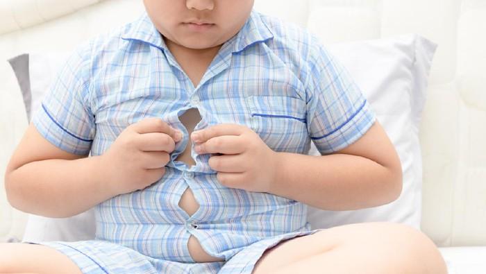 Anak obesitas