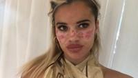 Foto: Wajah Influencer Penuh Bekas Luka, Ikuti Trik Kecantikan di TikTok