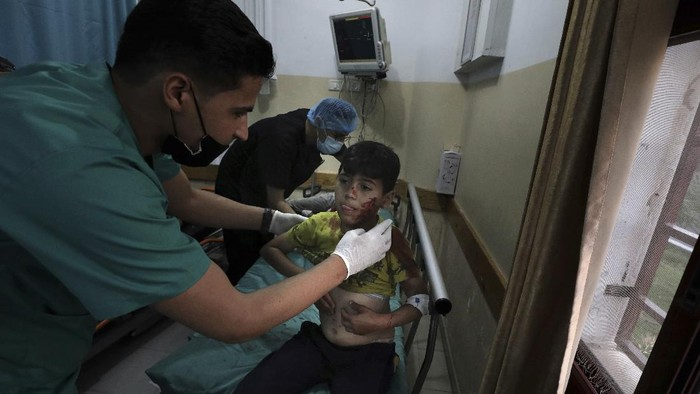 A wounded boy lies on a stretcher in a hospital following an explosion in the town of Beit Lahiya, northern Gaza Strip, on Monday, May 10, 2021, during a conflict between Hamas and Israel. (AP Photo/Mohammed Ali)