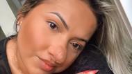 Curhat Wanita yang Idap Kondisi Langka, Sering Diejek Fiona Shrek