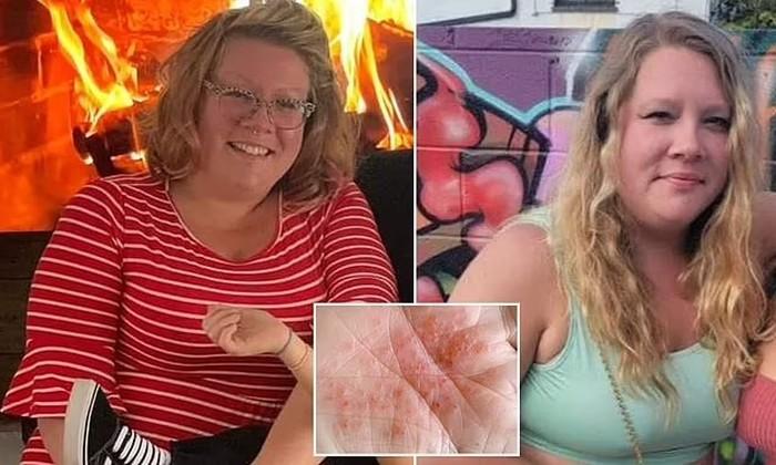 Wanita Ini Turun BB 14 Kg Setelah Rutin Minum Air Kencing