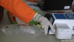 Ada Usulan GeNose Dicabut, Pengusaha Angkutan: Tolong Antigen Dimurahkan