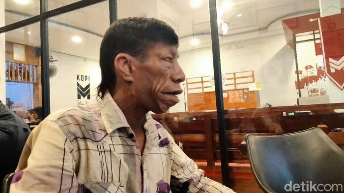 Syarif Surya Manurung (27) pemuda asal Kisaran Timur, Asahan, Sumut viral di medsos karena mengalami kondisi langka Treacher Collins Syndrome (Perdana R/detikcom)