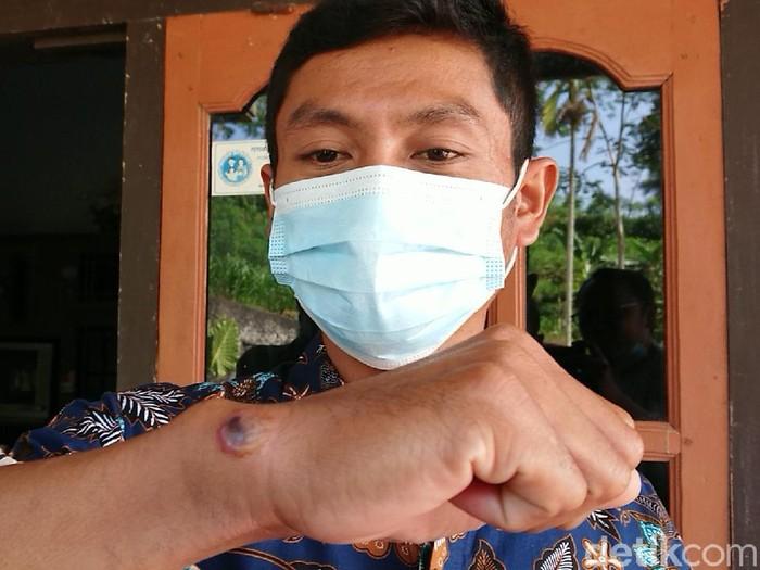 Kasus antraks di Tulungagung masih menjadi perhatian pemerintah daerah. Kepala Dusun Toro, Desa Sidomulyo, Kecamatan Pagerwojo, Agung Aris Saputra menjadi salah satu pasien yang diduga tertular antraks dari sapi.