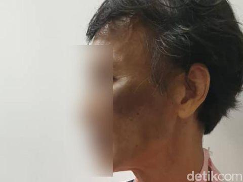PMI asal Lampung menjadi korban penganiayaan majikan di Malaysia (dok KBRI Kuala Lumpur)