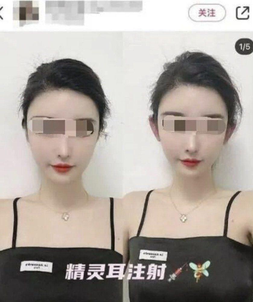 Viral tren kecantikan 'telinga peri' di China