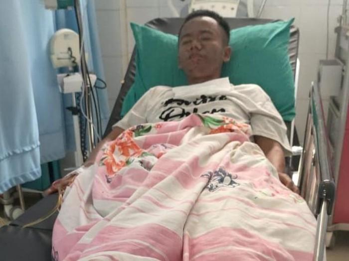 Pemuda difabel di Pandeglang badannya melepuh diduga dicekoki miras
