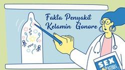 Gonore atau gonorrhea dikenal juga sebagai penyakit kencing nanah. Menular melalui aktivitas seks yang tidak aman, bisa menyerang pria maupun wanita.