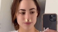 Redakan Sinus, Wanita Ini Taruh Bawang Putih di Lubang Hidung