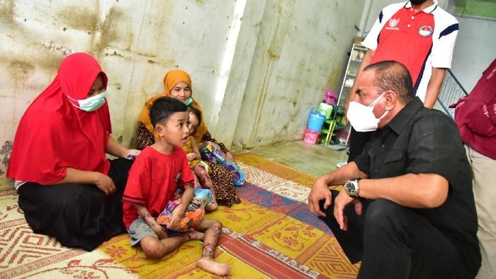 Edy saat menjenguk 2 anak dengan sakit kulit di Madina (dok. Pemprov Sumut)