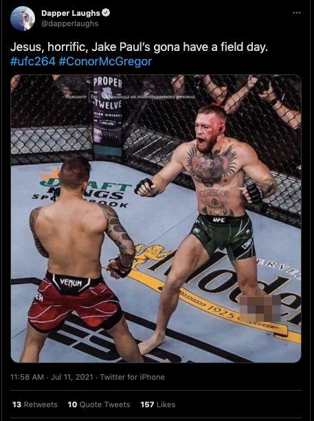 Momen engkel alias pergelangan kaki kiri Conor McGregor patah