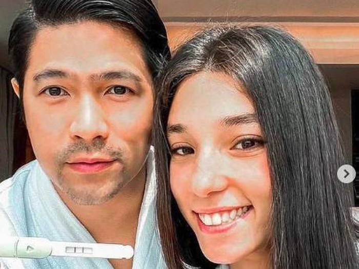Erick Iskandar dan Vanessa Lima umumkan kehamilan