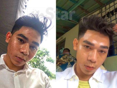 Transformasi wajah pria jerawatan viral