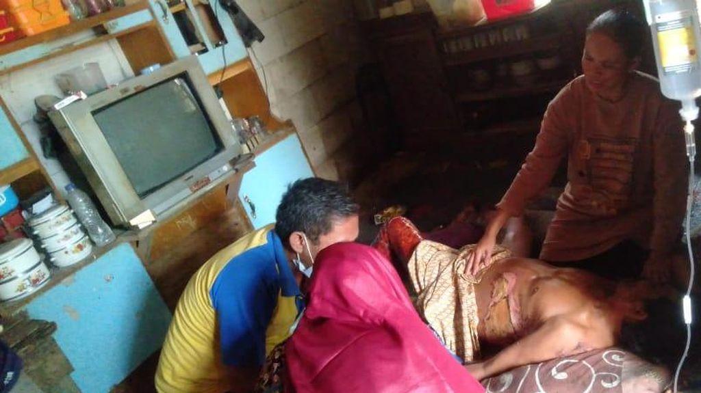 Setengah Badannya Terbakar, Tukang Cilok di Pandeglang Butuh Bantuan