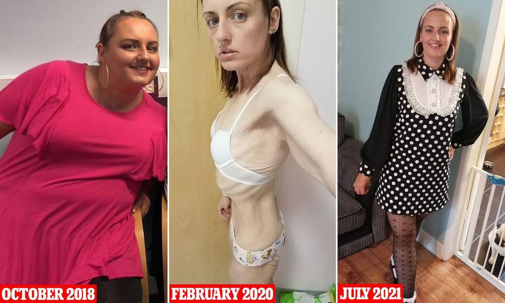 Kecanduan Obat Pencahar dan Minuman Diet, Wanita Obesitas Ini Jadi Anoreksia