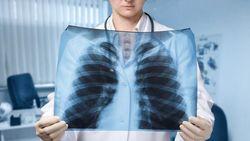 Wujud CT Scan Toraks 0-14 Hari Saat Terinfeksi Covid-19
