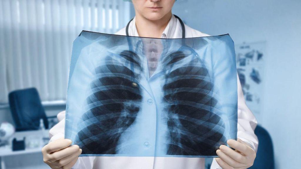Lagi-lagi Viral Efek COVID-19 pada Paru-paru Divaksin Vs Tidak