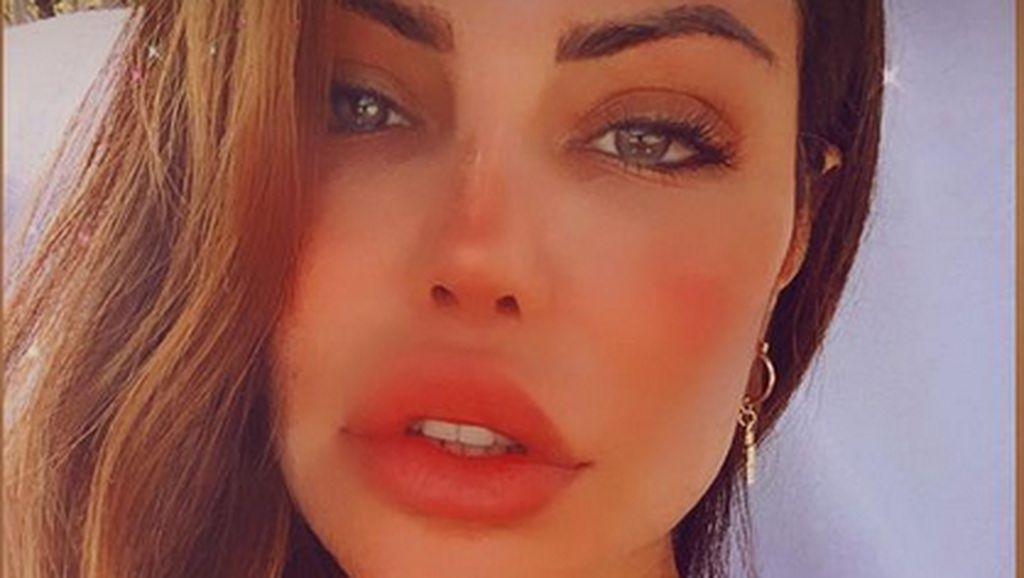 Foto Before After Bibir Model Brazil yang Dioperasi karena Keracunan Filler