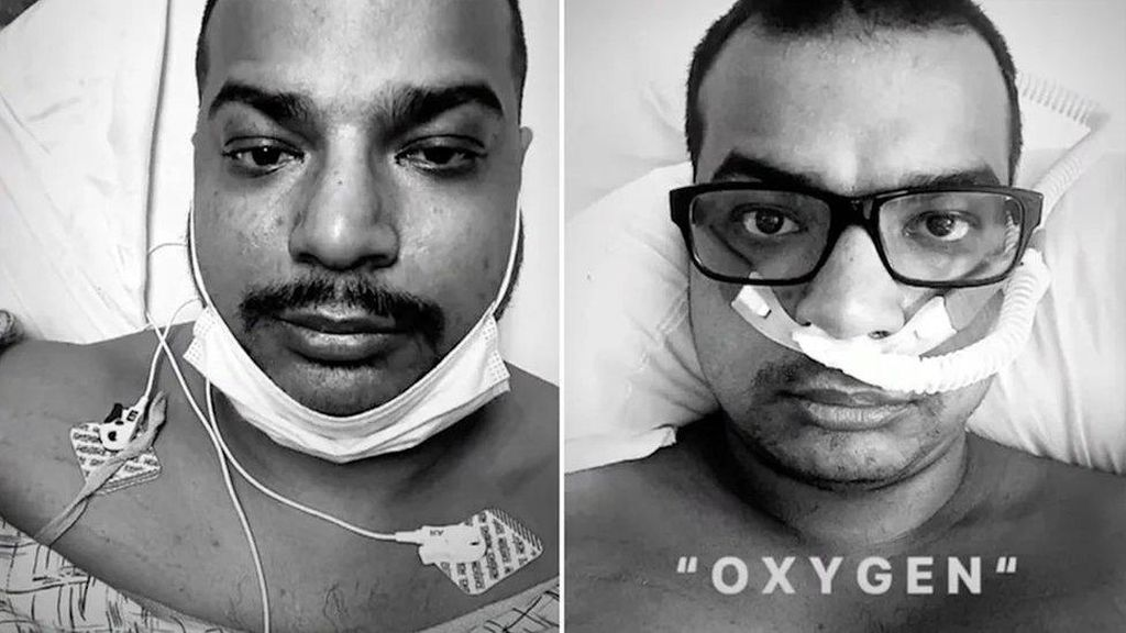 Pria yang Mengolok-olok Vaksin Corona Meninggal Akibat COVID-19