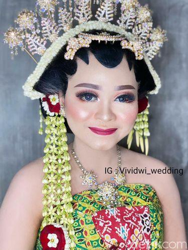 Jelang pernikahan, wajah pengantin ini penuh luka dan sukses bikin pangling saat hari pernikahan.