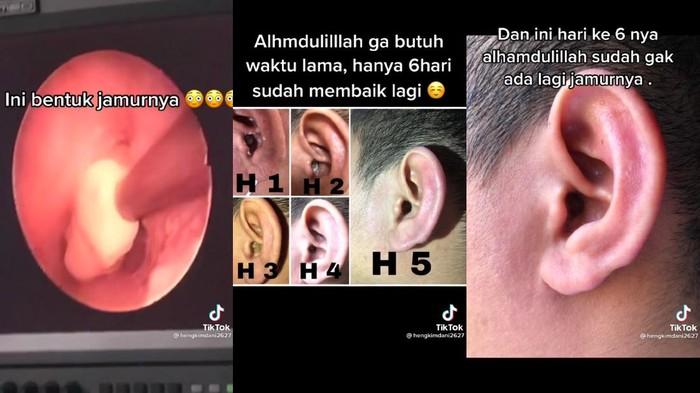 Infeksi jamur di telinga
