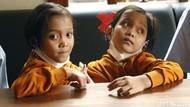 Kisah Bocah Kembar Siam Dempet Perut Asal Garut