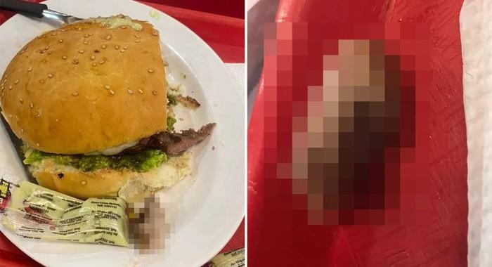 Bikin Trauma! Wanita Ini Temukan Potongan Jari Manusia di Burgernya