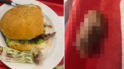 Hiiii! Wanita Ini Temukan Potongan Jari Manusia di Burgernya