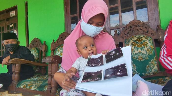 Bayi di Boyolali mengidap jantung bocor