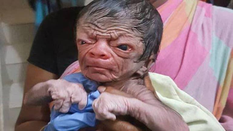 Bayi viral berwajah tak biasa