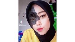 Ini Potret Remaja yang Viral Di-Bully karena Punya Tanda Lahir di Wajah