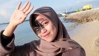 Hijabers Viral Dibully karena Ada Tanda Lahir di Wajah, Begini Nasibnya Kini