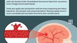 Perdarahan otak merupakan salah satu bentuk serangan stroke yang bisa dialami siapa saja. Kenali tanda-tandanya agar tak terlambat ditangani.