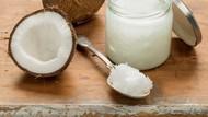 Hati-hati! Ini 3 Efek Kelebihan Konsumsi Minyak Kelapa Murni untuk Tubuh