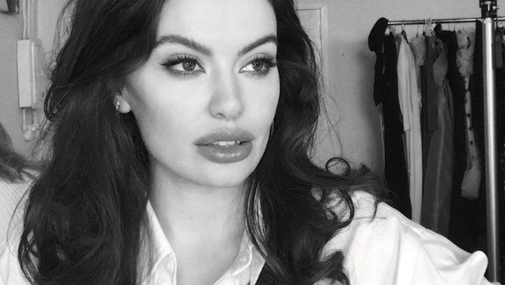 10 Pesona Miss Universe Albania 2021, Ilmuwan Cantik Mirip Angelina Jolie