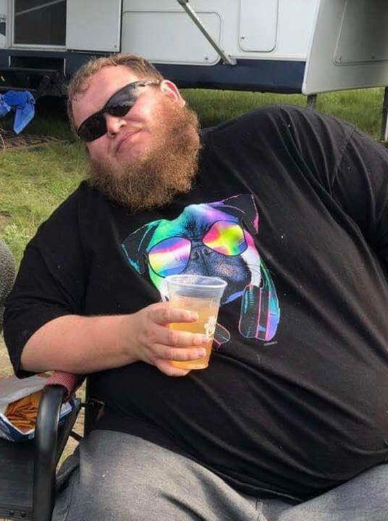 Berhenti Minum Cocktail dan Tak Lagi Makan Fast Food, Pria Ini Berhasil Turun BB 99 Kg!