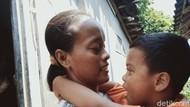 Pilu Ibu di Klaten, Anaknya Mendadak Buta-Suami Pergi Tak Tahu Rimbanya